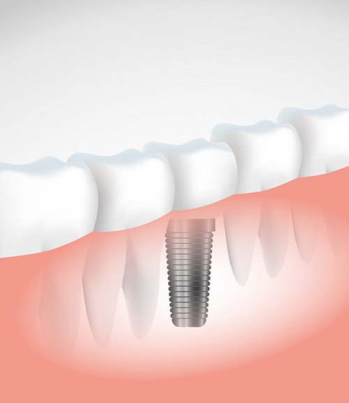 Implant | Kedron Family Dental