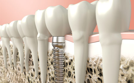Dental Implants | Kedron Family Dental