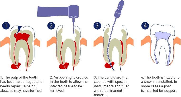 root canal | Kedron Family Dental